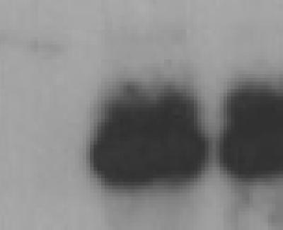 ZIKA VIRUS NS1 MONOCLONALS