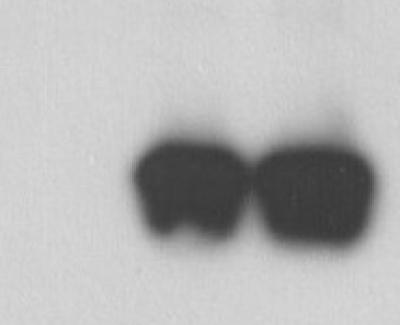 Zika virus envelope protein